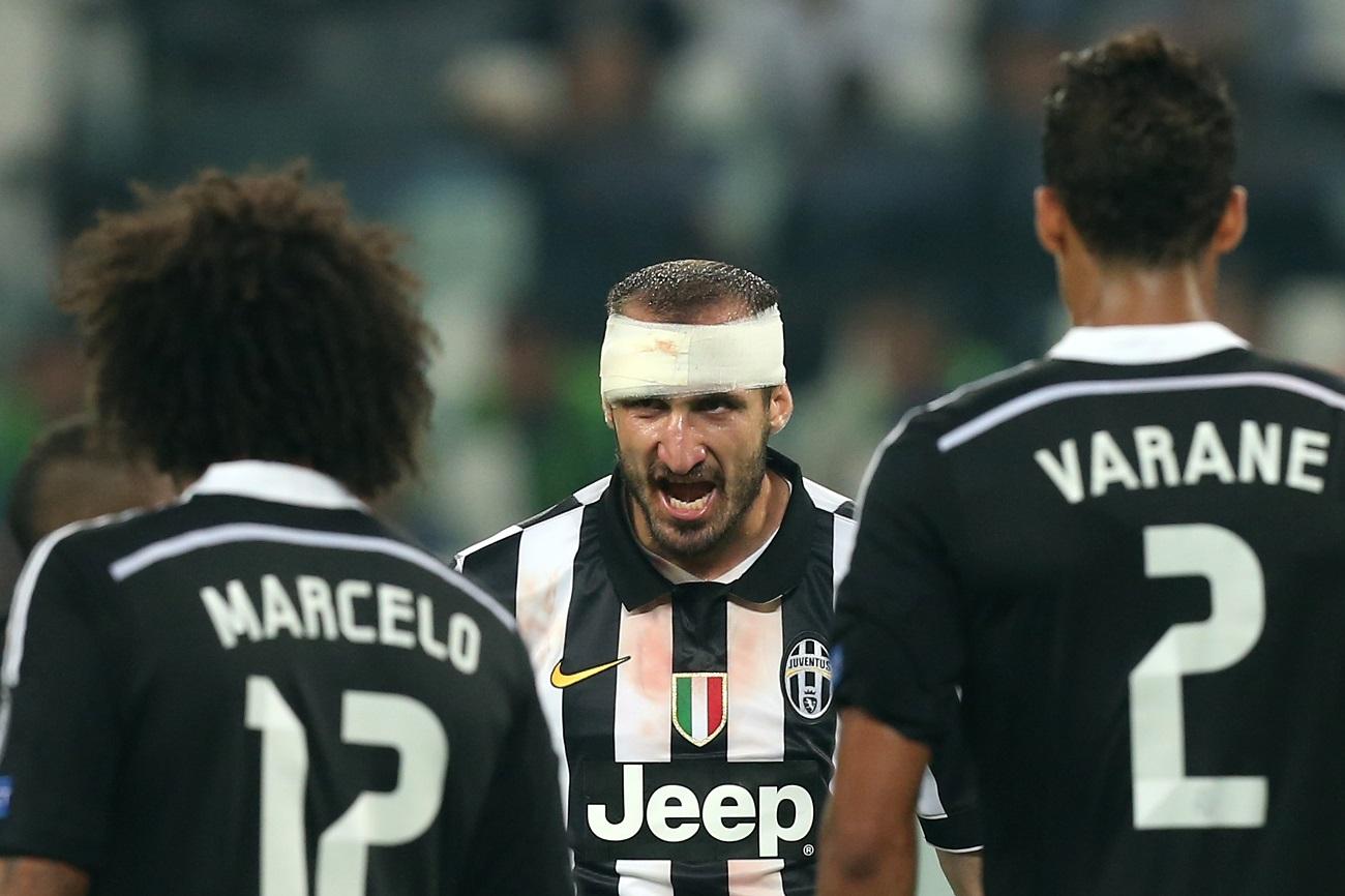 Chiellini szerint a Guardiola-féle foci tönkretette a védőket