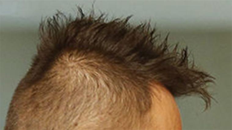 Hölgyeim és uraim, most pedig következzék Szijjártó Péter haja!
