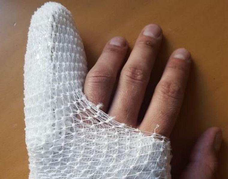 Akkorát ütött a Liget kopasza Gulyás Márton kezére, hogy meg kellett műteni