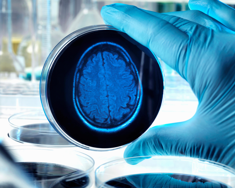 Az Alzheimer-kór első jele lehet, ha valaki elveszti a navigációs képességét