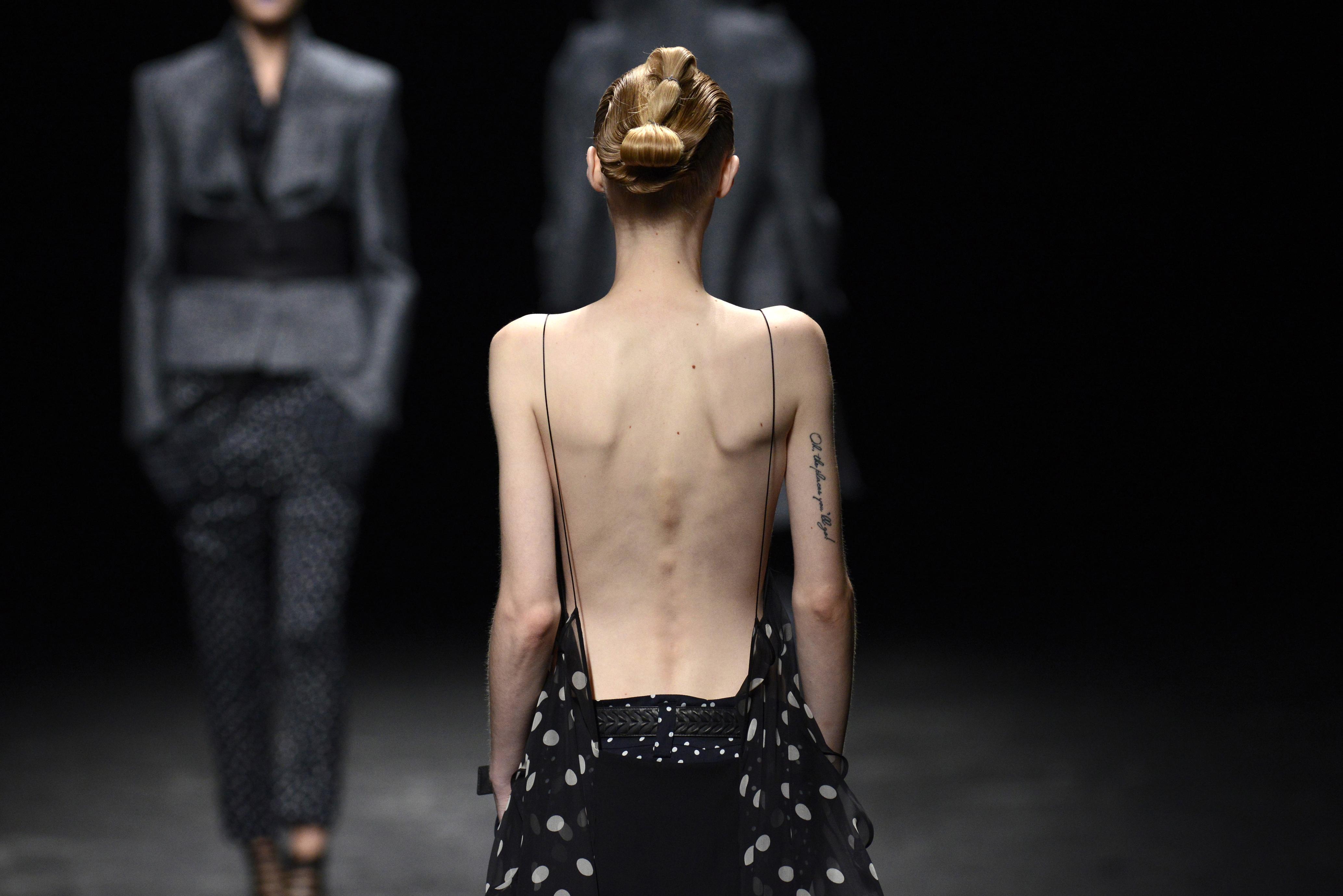 Nemcsak mentális, hanem testi okai is vannak az anorexiának egy új kutatás szerint