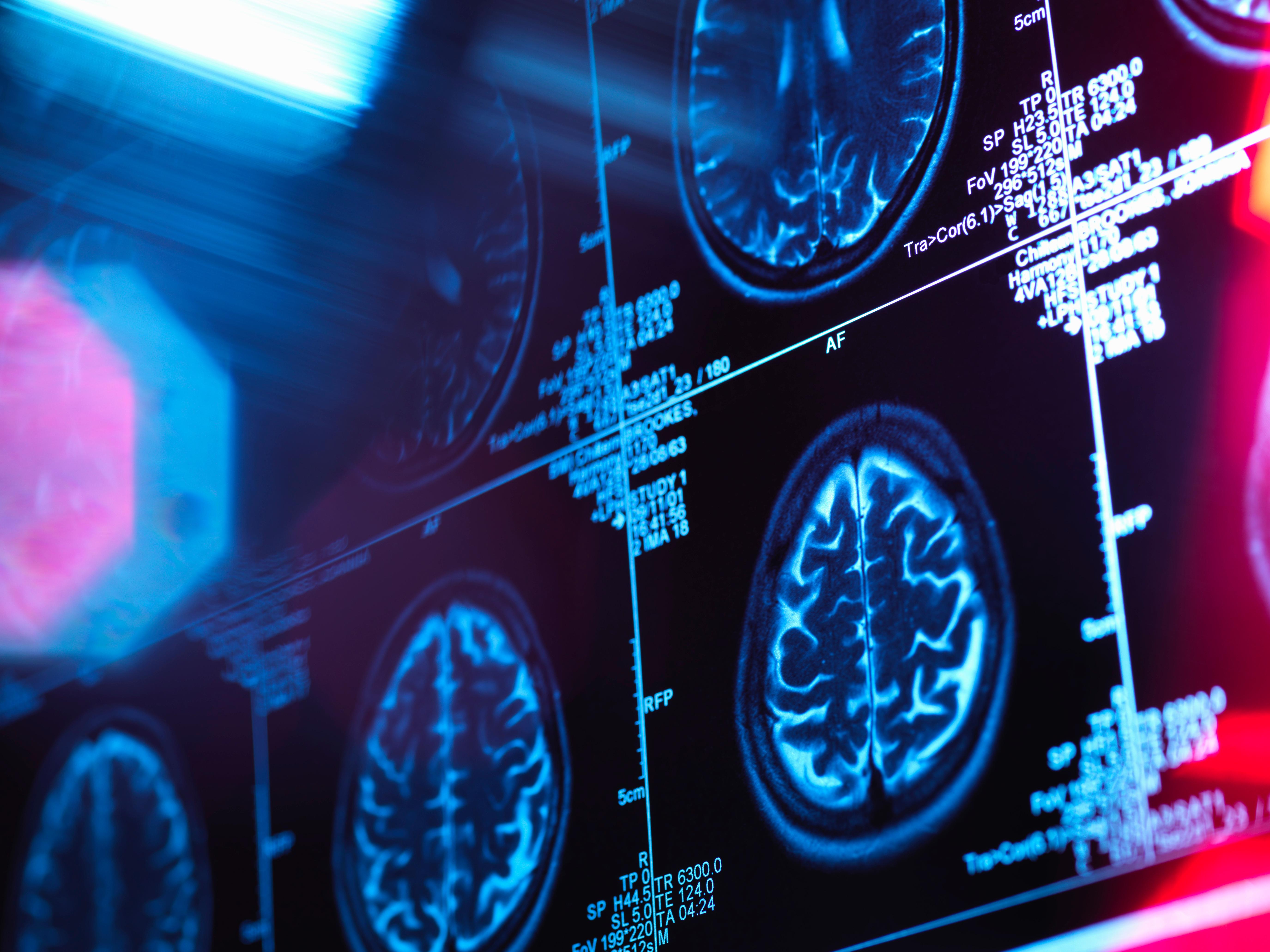 A mesterséges intelligencia tíz évvel a tünetek jelentkezése előtt felismeri az Alzheimert
