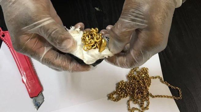 Fura volt a Srí Lanka-i férfi járása, egy kiló aranyékszert találtak a végbelében