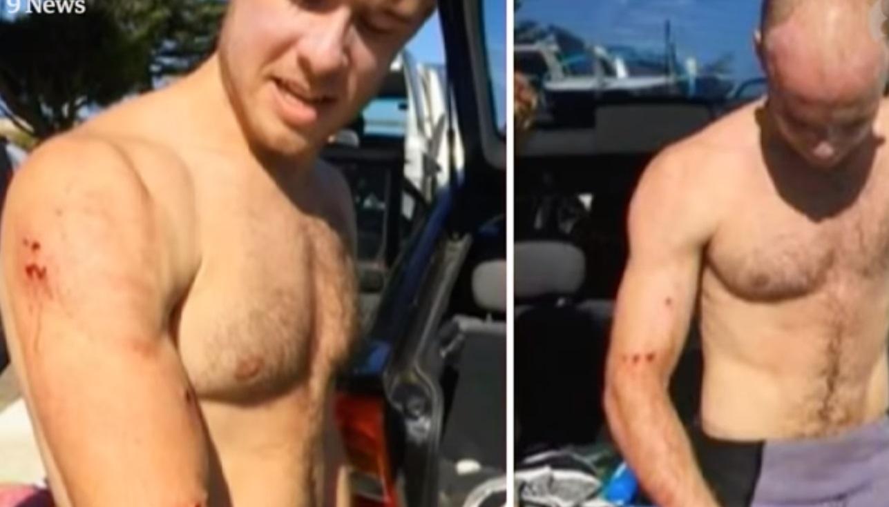Behúzott egyet a brit szörfös a rátámadó cápának, megúszta