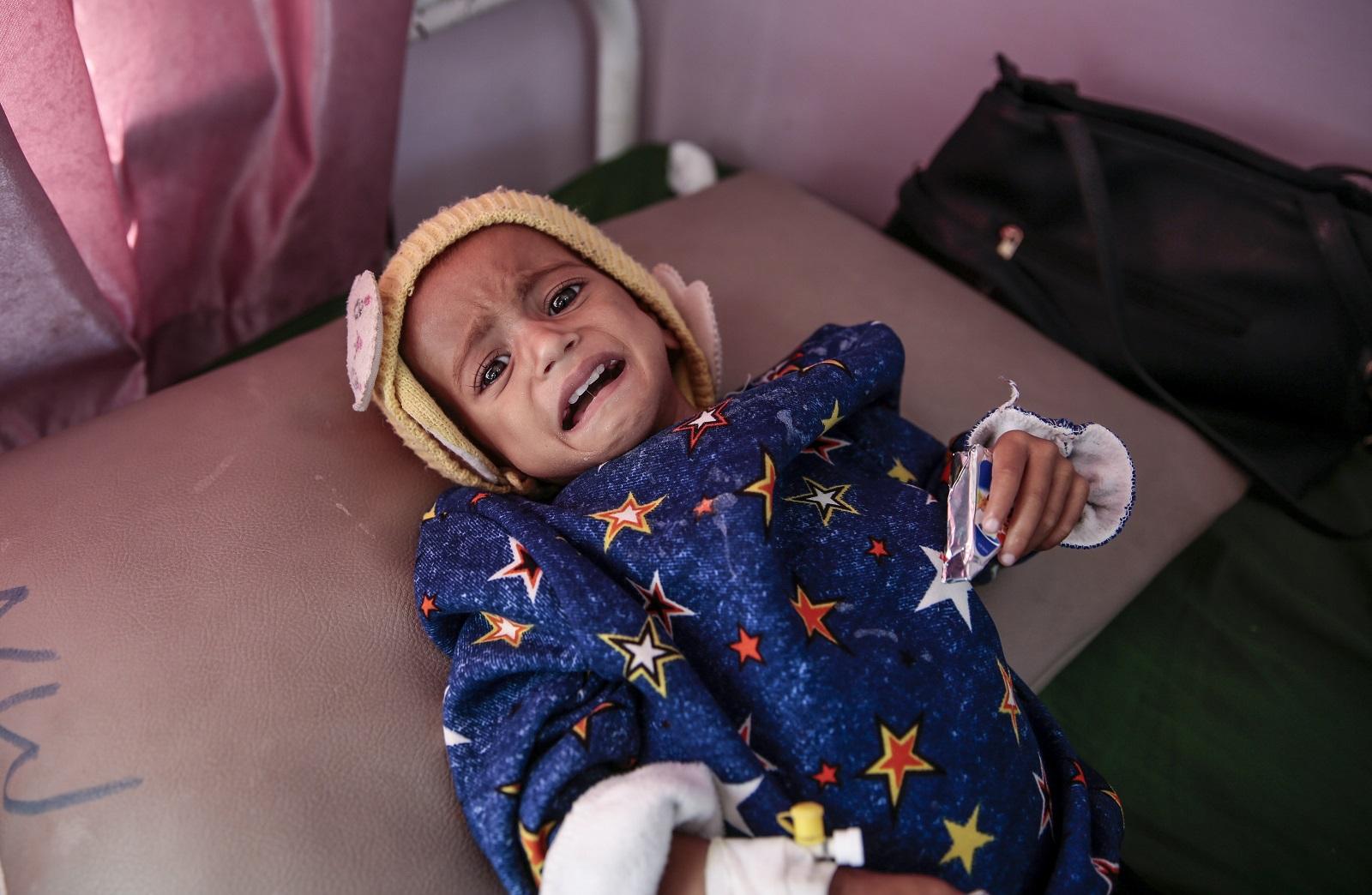 Idén 50 000 gyerek halhat meg Jemenben