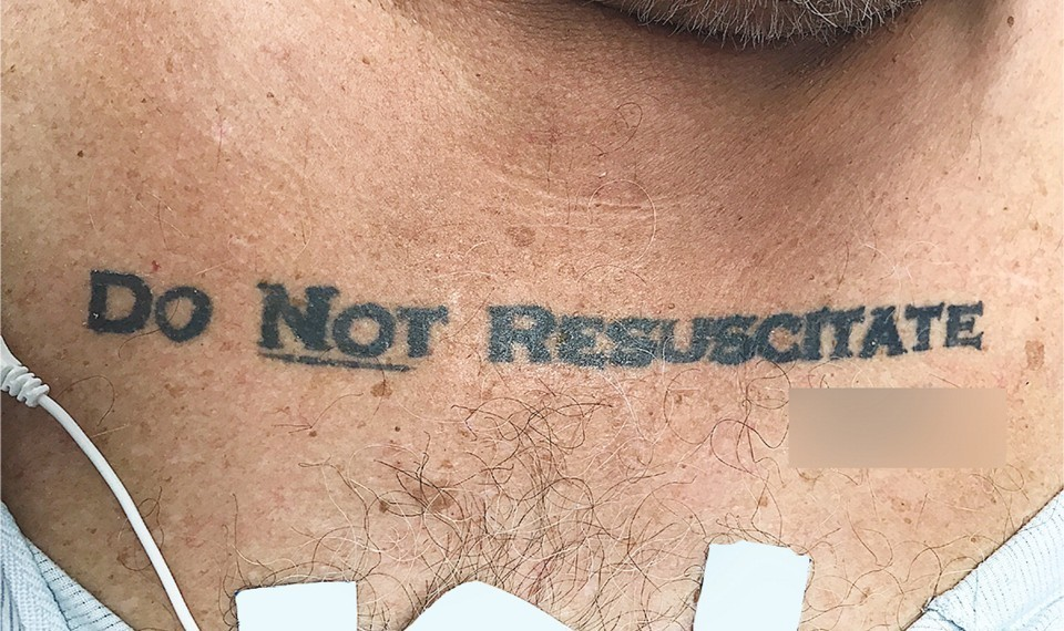 """Mit tegyen az orvos, ha a beteg a mellkasára tetoválta: """"Ne élessz újra!""""?"""