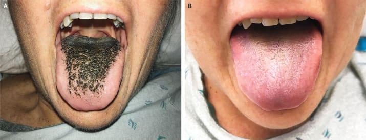 Fekete, szőrös nyelve lett az antibiotikumoktól egy amerikai nőnek
