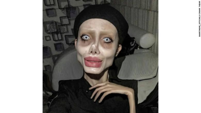 Letartóztatták a döbbenetes külsejéről híres iráni influencert, aki állítólag Angelina Jolie-vá akarta operáltatni magát
