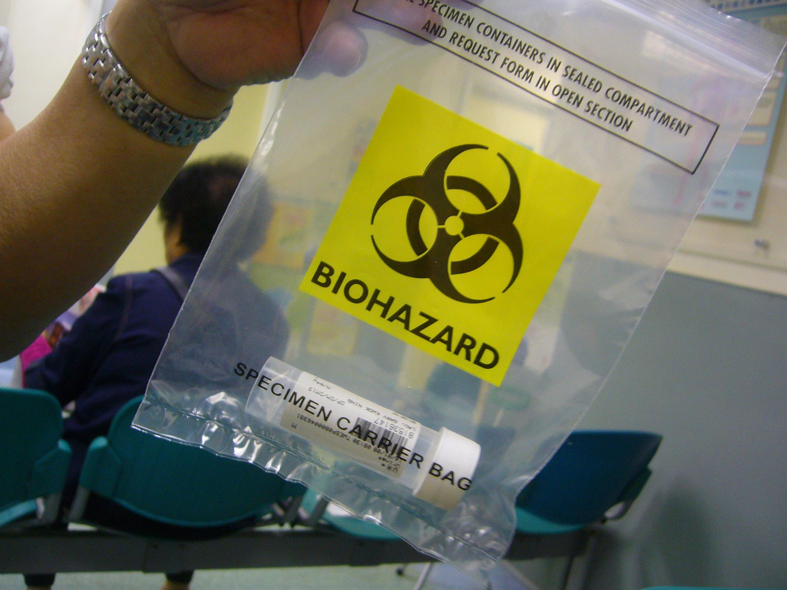 """A labor helyett egy moziba küldték a """"nagyon fertőző"""" vizeletmintákat Seattle-ben"""