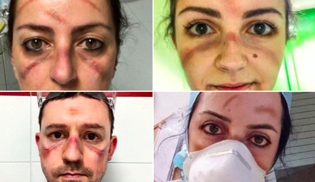 Olasz ápolók: Sírni sincs már időnk