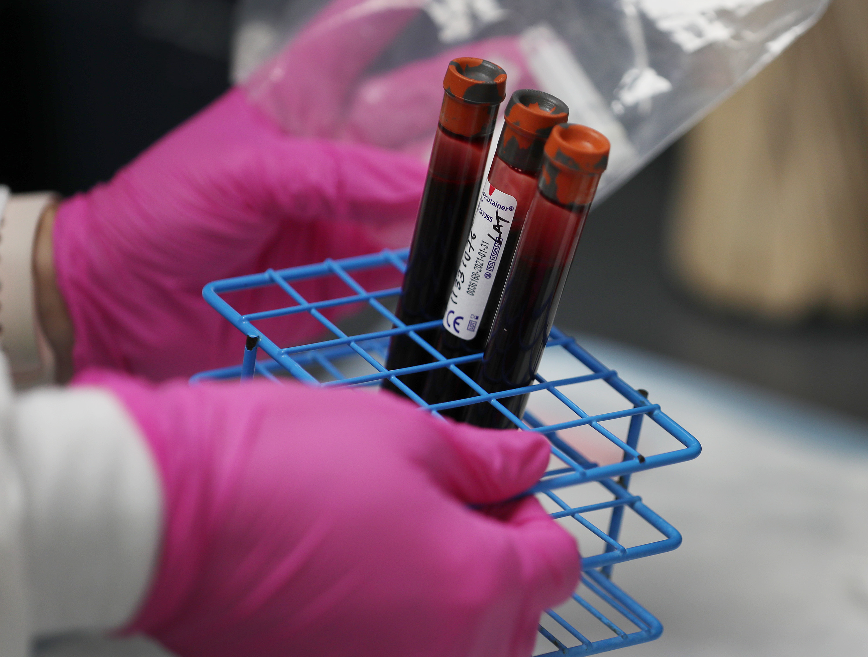 A mostani járványhelyzet pécsi kutatók szerint egyáltalán nem kecsegtet jó kimenetellel