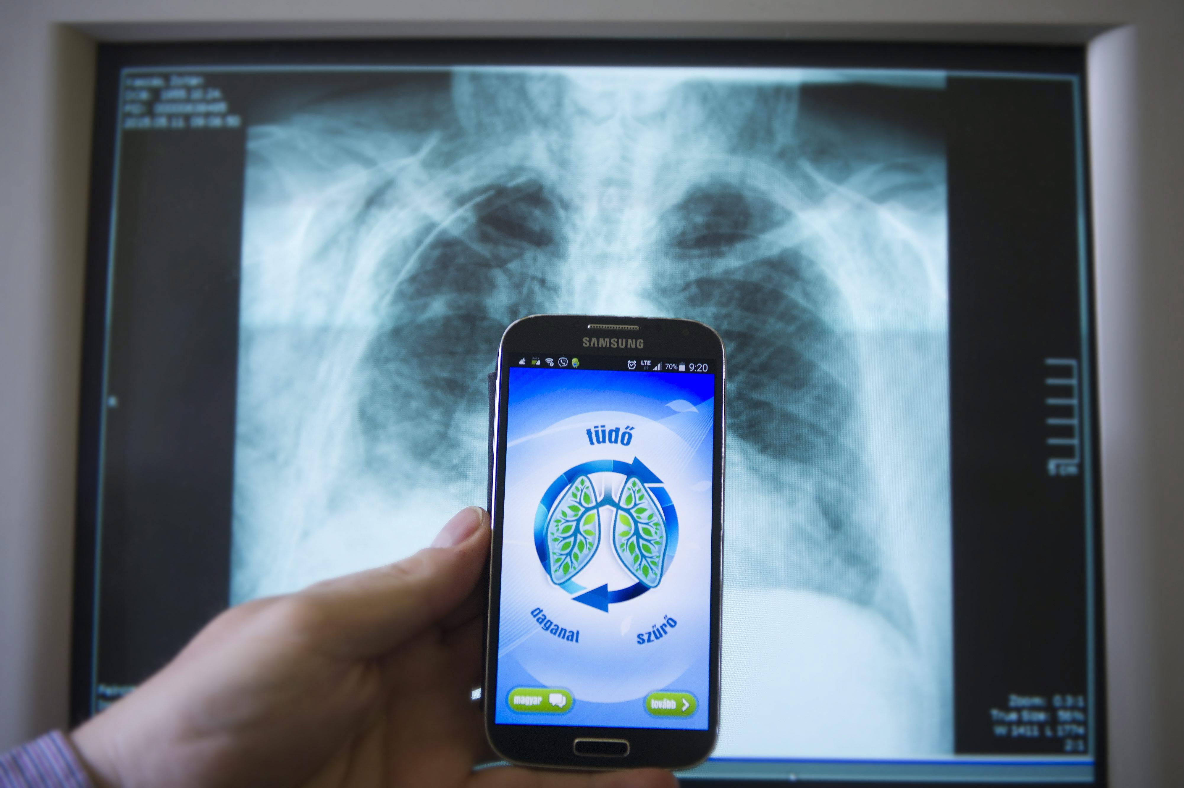 Halálosból krónikus betegséggé szelídülhet a tüdőrák