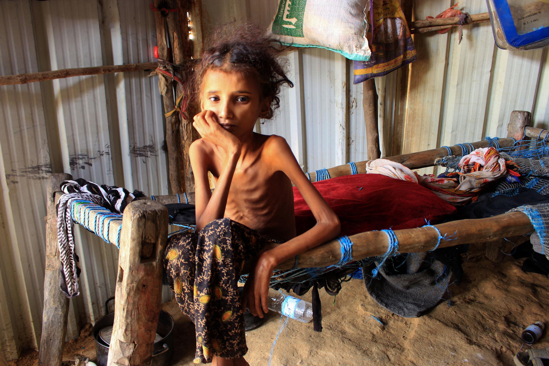 ENSZ: Jemenben több mint kétmillió gyerek fog éhezni 2021-ben